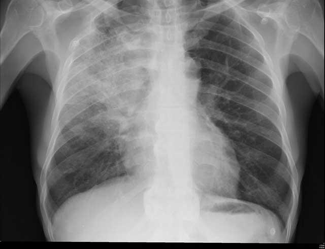 pnemonia related injury claims